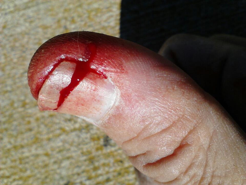 Holesaw Injury-thumb.jpg